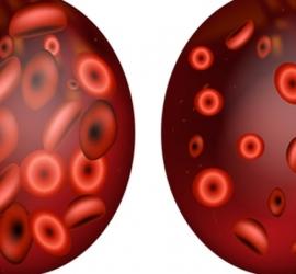 إجراء تحليل بوتاسيوم الدم في هذه الحالة - تفاصيل