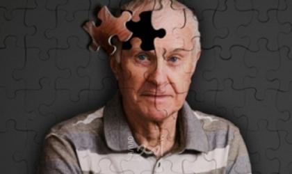 3 أشياء تزيد احتمالية الإصابة بالخرف وتدهور الدماغ